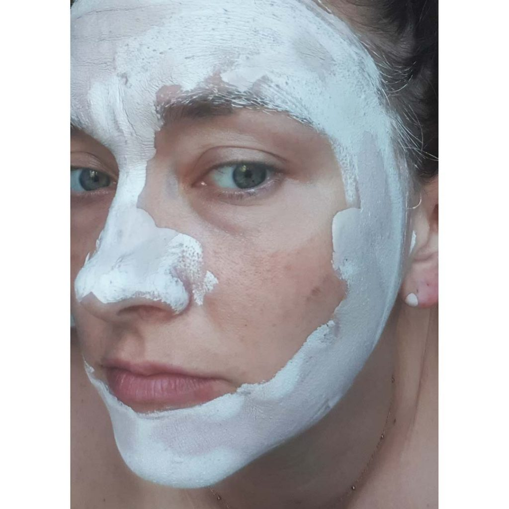 T Zone Pink Clay review - this is my face and it shows how it dries
